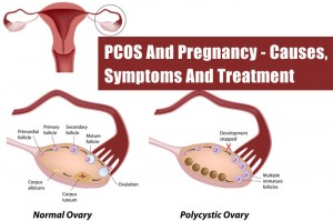 PCOS-And-Pregnancys